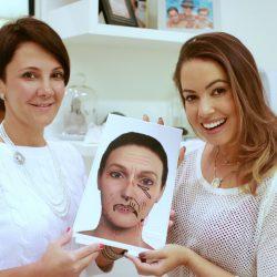 Tudo sobre Botox e Preenchimento com Dra Roseli Andrade